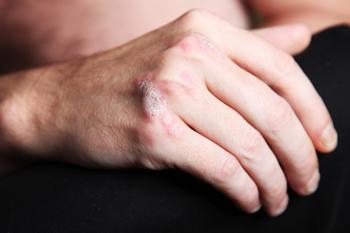 Was tun bei Hautproblemen im Beruf?
